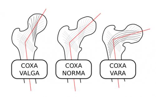 a1sx2_Thumbnail1_Coxa-valga-norma-vara-000.png