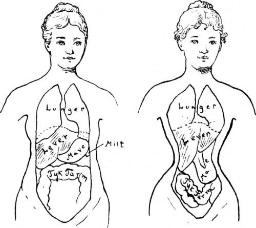 a1sx2_Thumbnail1_corset-training1.jpg